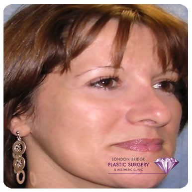 After cheek augmentation