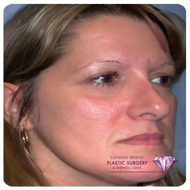 Before cheek augmentation