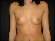 breasts before fat transfer - front view