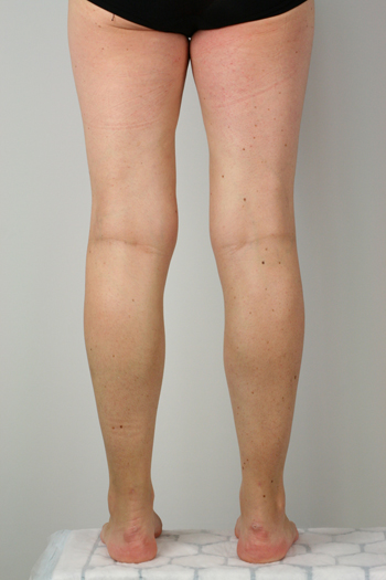 Back of a females legs after ELVA treatment