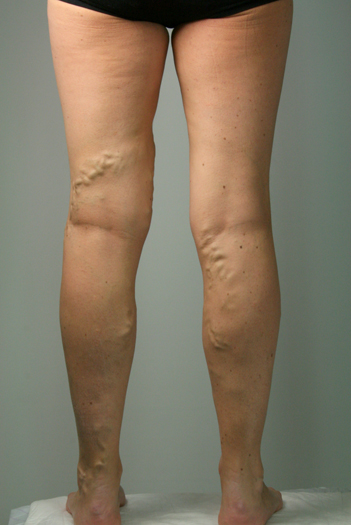 Back of females legs with Varicose veins before EVLA