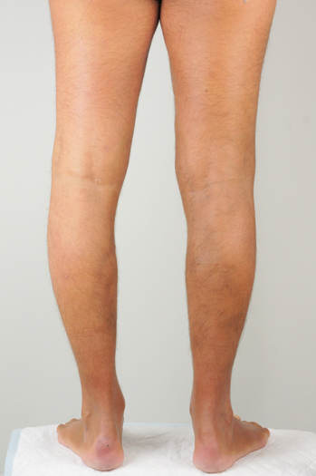 Males legs after having Varicose Veins removed with Endovenous Laser Ablation treatment