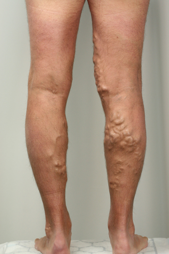 Varicose Veins on the back of a males leg beforeEndovenous Laser Ablation treatment