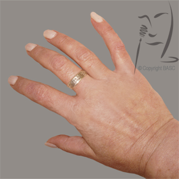 Hand with psoriasis after skin camouflage application