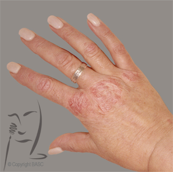 Psoriasis on female hand