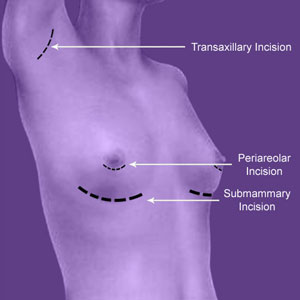 Breast Implant Entry Points