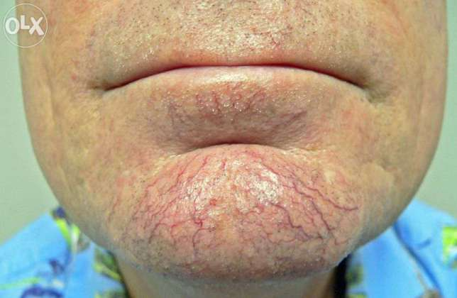 Chin thread veins before Thermavein treatment