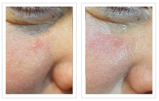 Before and after Thermavein treatment on cheek