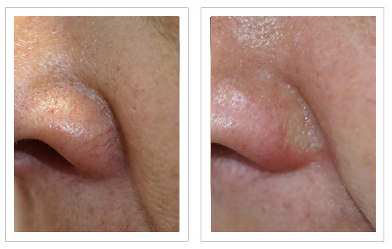 Before and after Thermavein treatment on nose