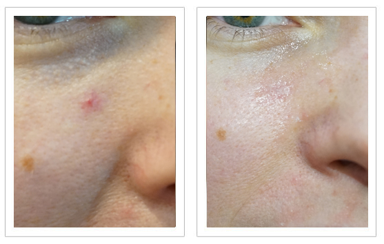 Before and after Thermavein treatment for red spot