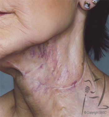 Vascular disturbance on female neck