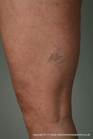 Legs veins before sclerotherapy treatment