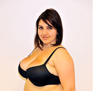 Female after liposuction breast reduction - Front View