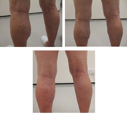 Male patient treated for varicose veins with endovenous laser ablation.