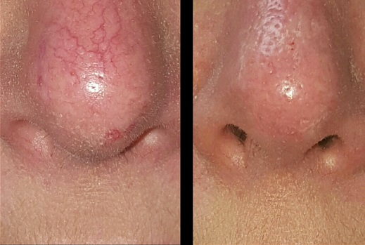 Before and after nose treatment for thread veins using Thermavein