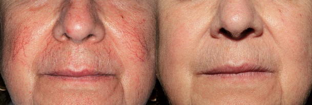 Remove of thread veins on the cheek with Thermavein