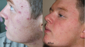 Thye results of before and after on a male with Acne