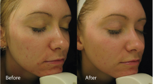 before and after on Acne after using the dermalux