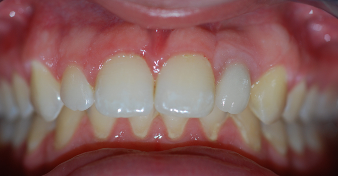 The final result of having Dental Implants