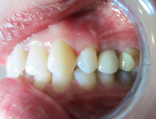 The result of having a Dental Implant fitted