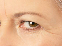 Eye Bags, Crow`s Feet & Dark Circles Treatment Options