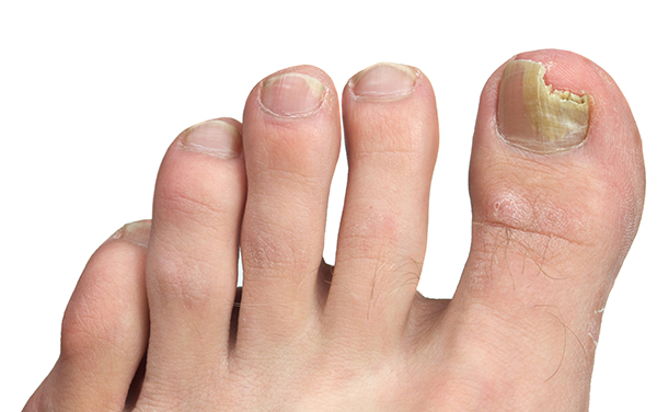 Fungal nail infection Onychomycosis
