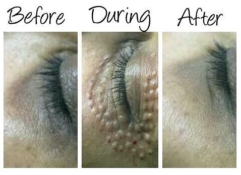 Xela-Rederm-before-and-after-eye