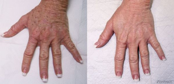 Before and After Plasma Skin Resurfacing Image