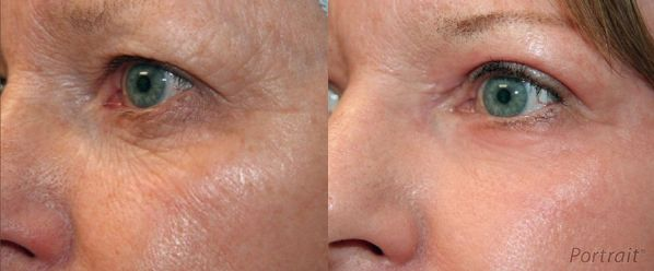Before and After Plasma Skin Resurfacing Images