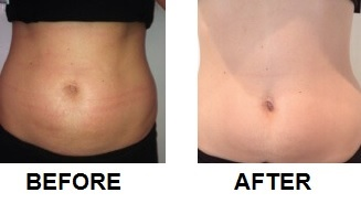 Before and after lipoglaze treatment